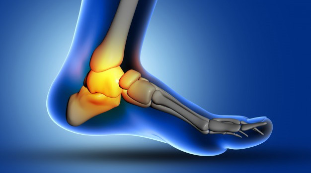 Foot and Ankle Pain Conditions