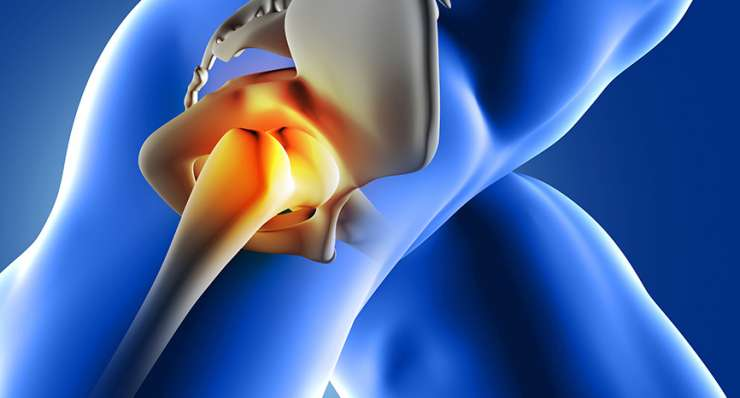 Hip, Buttock and Thigh Pain