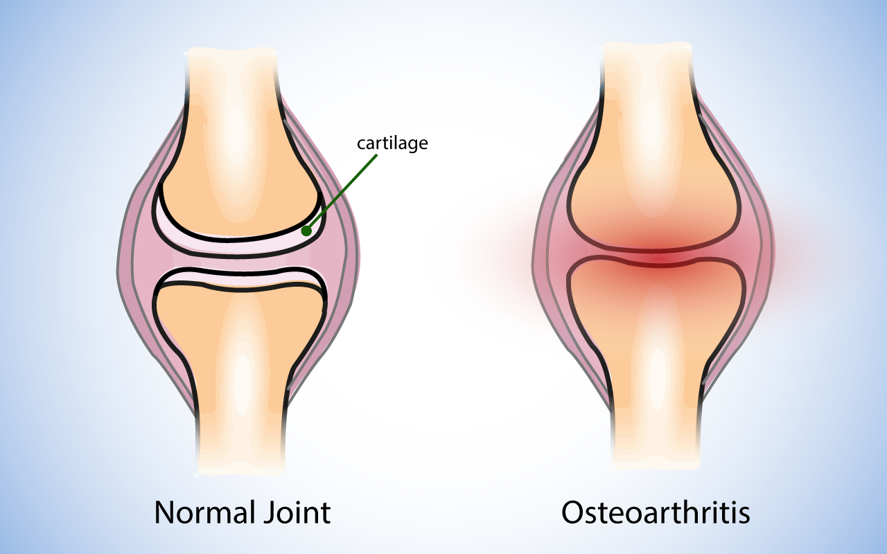 Diagram showing effect of spinal osteoarthritis on the joints