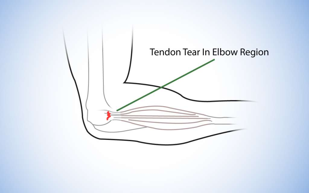 diagram of the elbow joint and tendon, highlighting the symptomatic area of Tennis Elbow